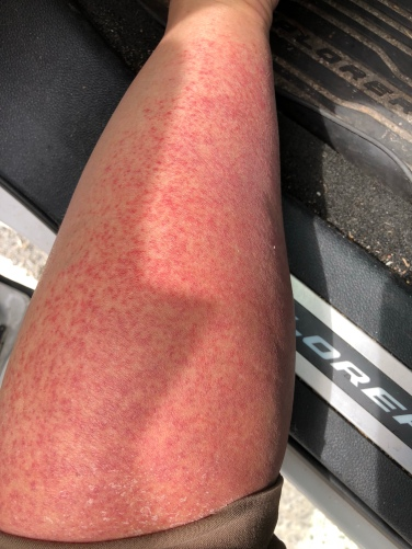 Dee - sunscreen rash